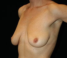 Breast Lift before 633849