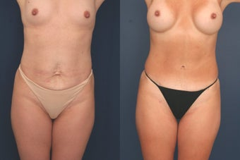 Full Tummy Tuck before 369651