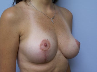 Breast Implant removal and breast lift 589928