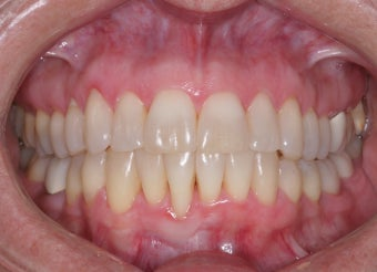 Invisalign after 372731