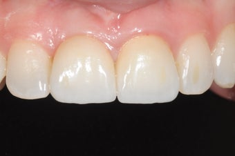 Single implant and crown in smile zone