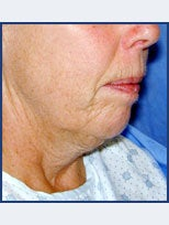 Neck Lift and Chin Implant before 87077