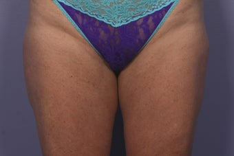 CoolSculpting Outer Thighs/Saddlebags after 429669