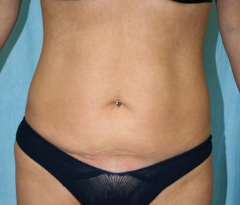 Local Anaesthetic Tummy Tuck before 344435