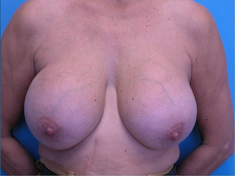 Breast Implant Removal  before 310520