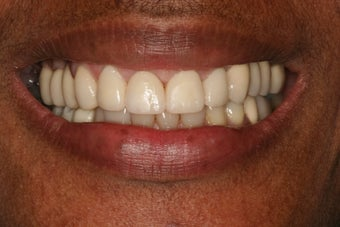 Smile makeover/ Full mouth reconstruction after 317154