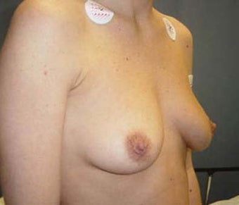 Breast Augmentation  before 131652