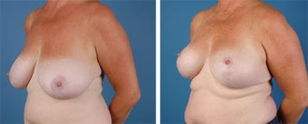 Breast Lift 355777