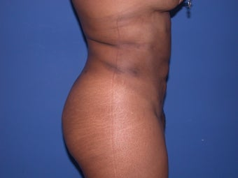 Liposuction on braline, flanks and abdomen after 197269