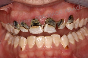 Direct Composite Resin Veneers 346958