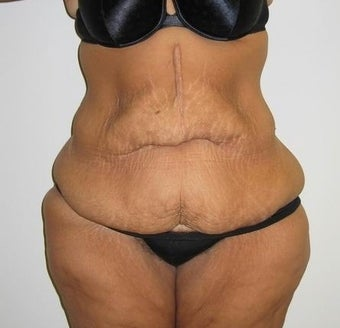 Abdominoplasty and Liposuction after massive weight loss before 615720