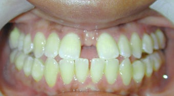 Adult Orthodontic Treatment (case #3KE) before 224691