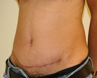 Abdominoplasty Revision 493649