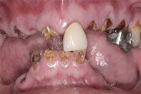 Dental Implants before 510573
