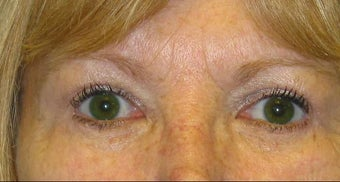 Upper and Lower Lid Blepharoplasty after 147719