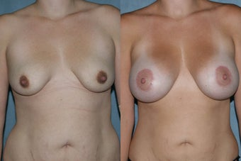 Breast Augmentation - Silicone Implants before 130838