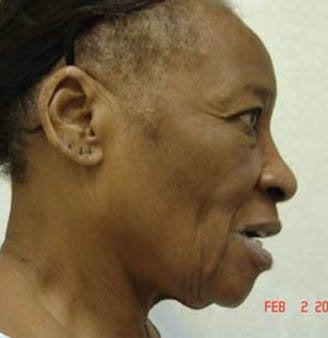 Face Lift and Neck Lift Surgery before 155747