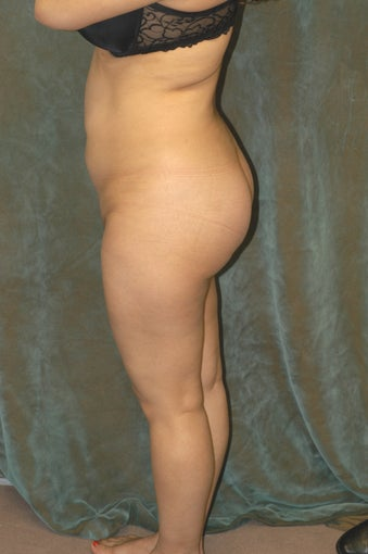Women's Buttocks Augmentation  after 518156