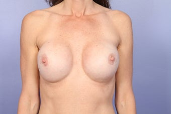 Breast Revision after 307224