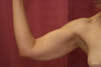 Brachioplasty or arm tuck in los angeles 583673