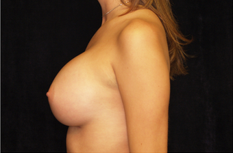 Breast Augmentation 335970