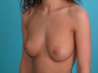 Flattering Breast Augmentation with Saline Implants before 266921