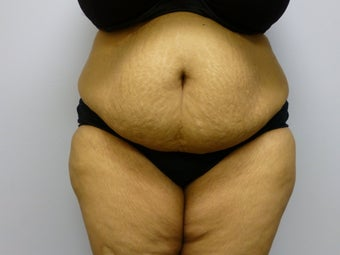 Mini Tummy Tuck and liposuction  before 590774