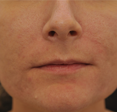 Acne Scarring after 426028