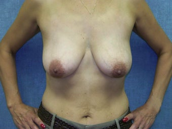Breast Lift with internal bra before 385199