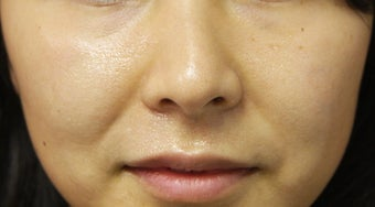 Injectable Filler before 398377