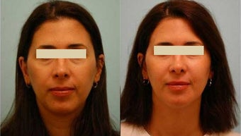 Fat Transfer/Fat Grafting/Facial Rejuvenation before 136340