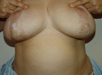 Scar revision breast