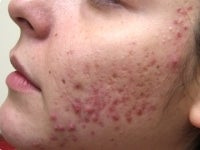 Acne/Acne Scars Treatment with Smoothbeam before 272003