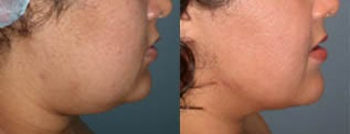 Liposuction (chin and jaw line) before 96477