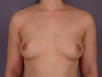 Breast Implants  before 305415