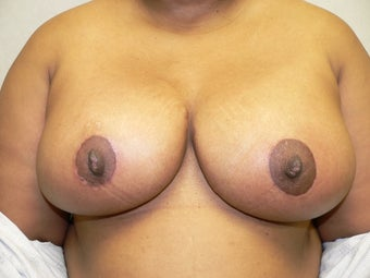 Ultimate Breast Lift after 359174