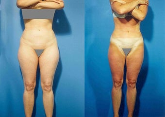 Liposuction before 636175