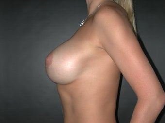 Breast Augmentation  after 110082