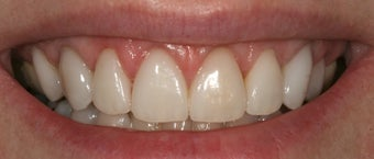 Gum re contouring after 393308