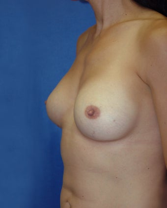 Breast Implant Removal and Reaugmentation after 117732