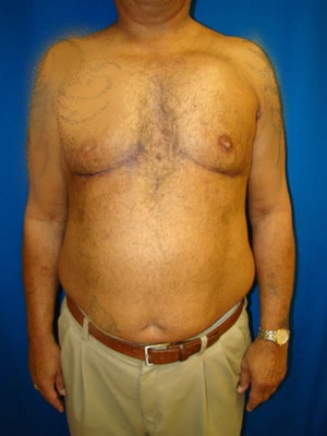 Pectus Excavatum, Chest Wall Reconstruction Surgery after 145941