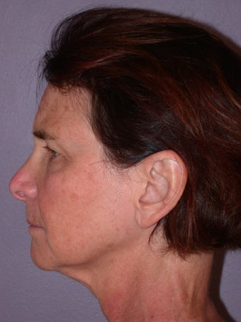 Neck lift before 306413