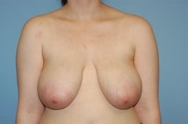 Breast Reduction before 616389