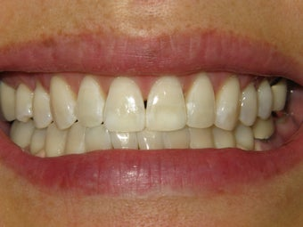 KOR Whitening after 307309