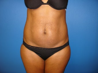 Abdominoplasty (Tummy Tuck) before 221544