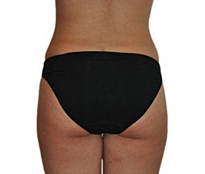 Butt Augmentation (Implants) after 550251