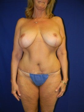 Full Abdominoplasty and Breast Lift with Implants after 381787