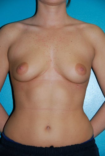 Breast Augmentation before 348645