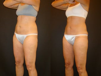 CoolSculpting before 576273
