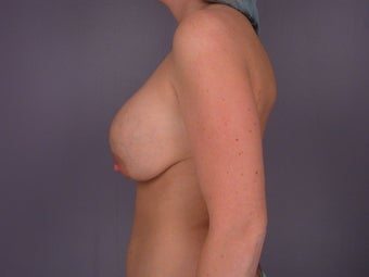 Breast Lift / Breast Augmentation   before 291017